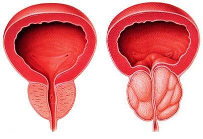 Prostatin otlarla mualicesi